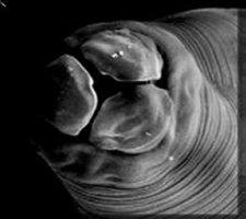 roundworms02