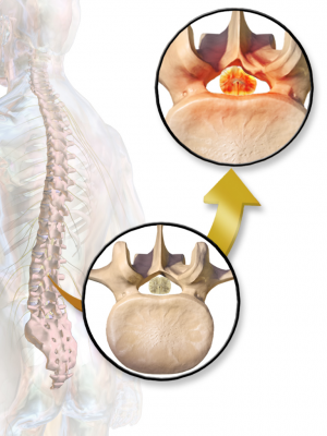Spinal_Stenosis