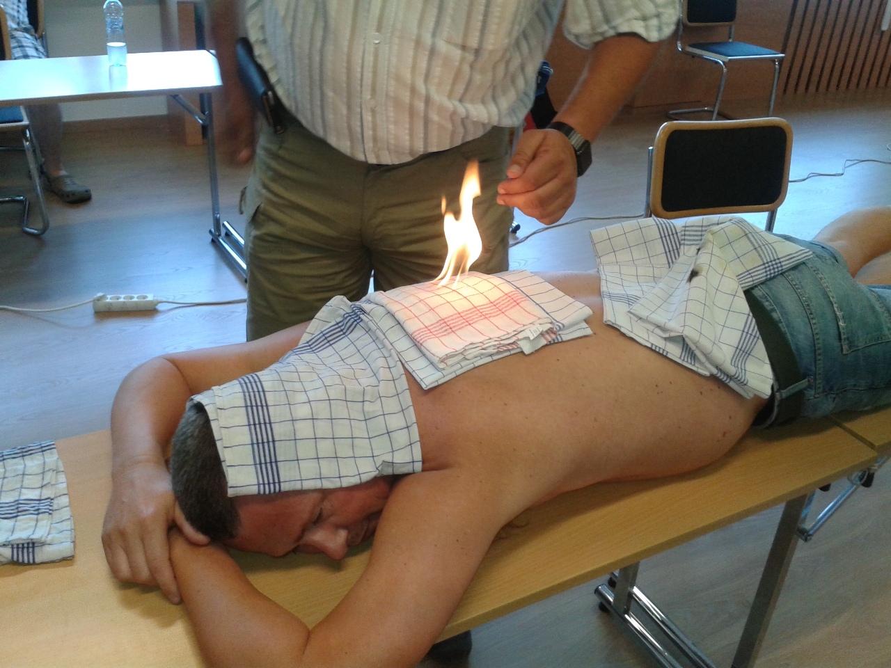 Liecenie ohnom